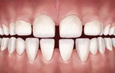 gaps-teeth
