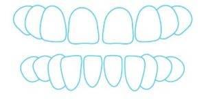 Gaps between teeth and space