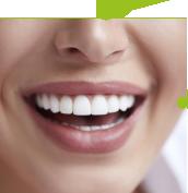 SDalign-Smile-Guarantee