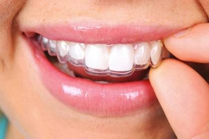 wearing of the clear aligners