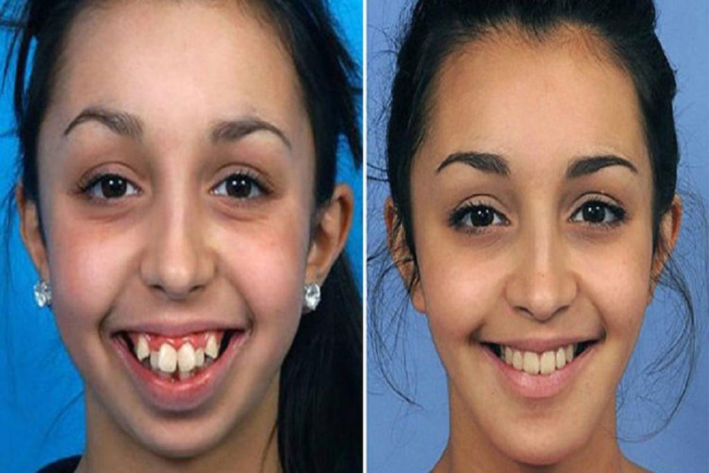 Braces affect your facial structure