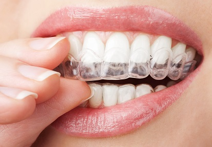 Clear Aligners in india