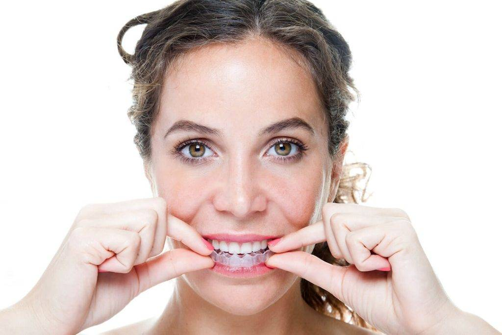 Clear aligners for underbite