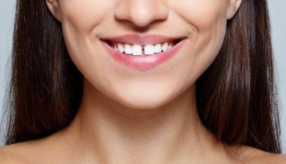Gap between the teeth