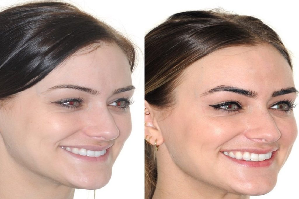 braces can change the shape of your face