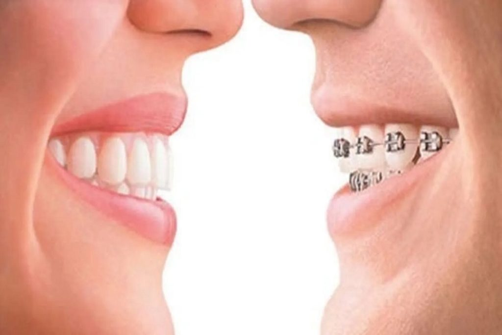 Is Clear Aligner Faster Than Braces