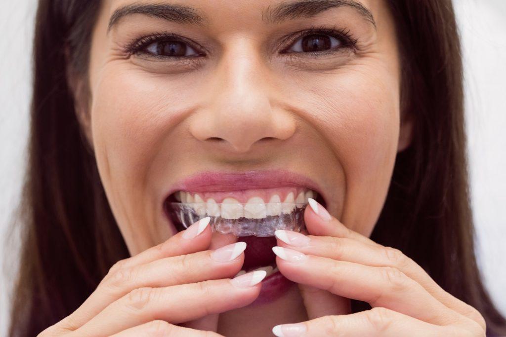 Procedure To Get Dental Clear Aligner Braces