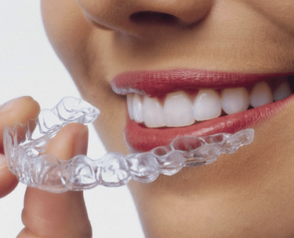 Removing clear aligners