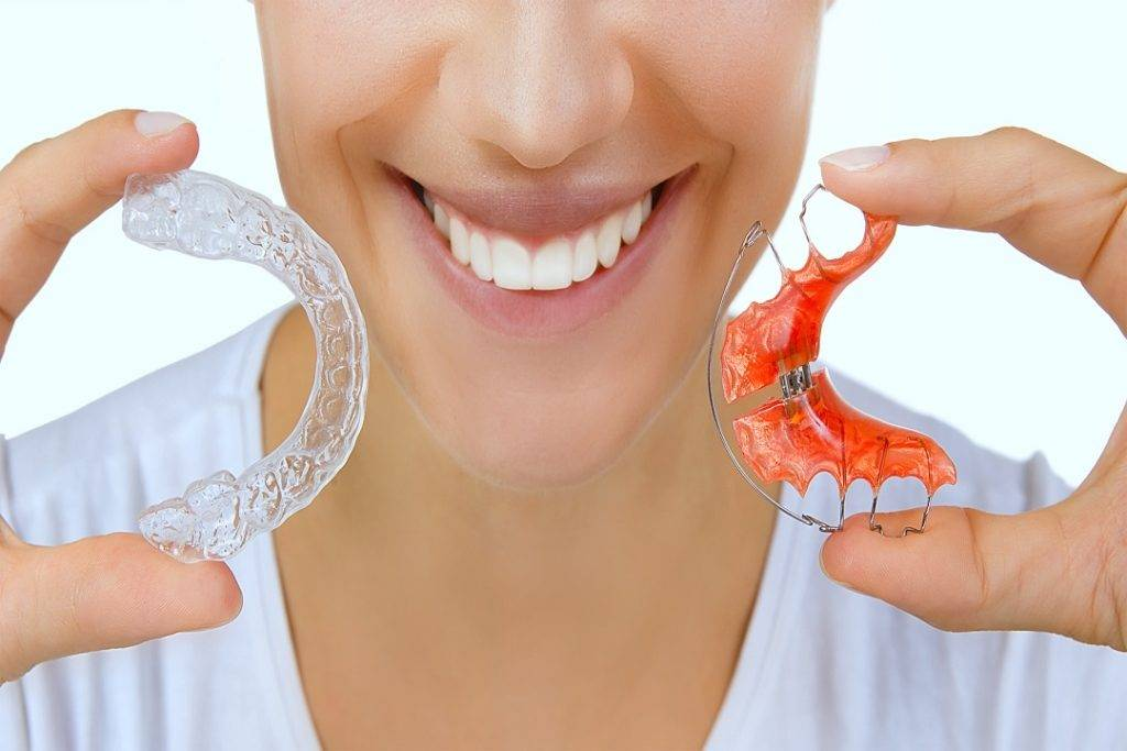 Retainers after Clear aligners treatment