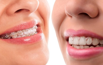 Traditional Braces and Clear Aligners