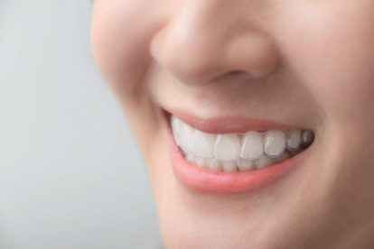 What are your nighttime aligners