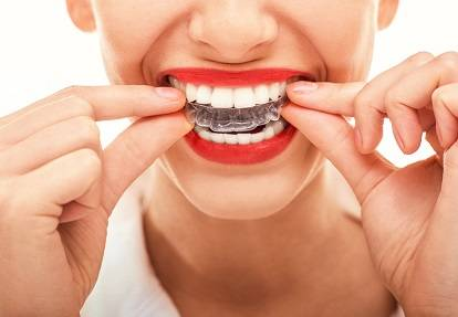 Working of the clear aligners