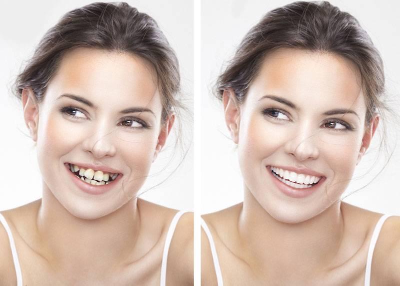 solve crooked teeth