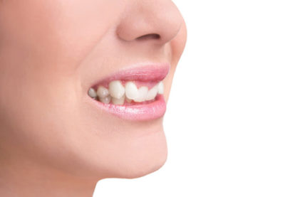 woman with overbite