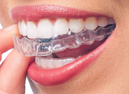 clear aligners benefits
