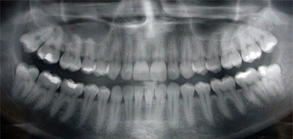 dentist-x-ray